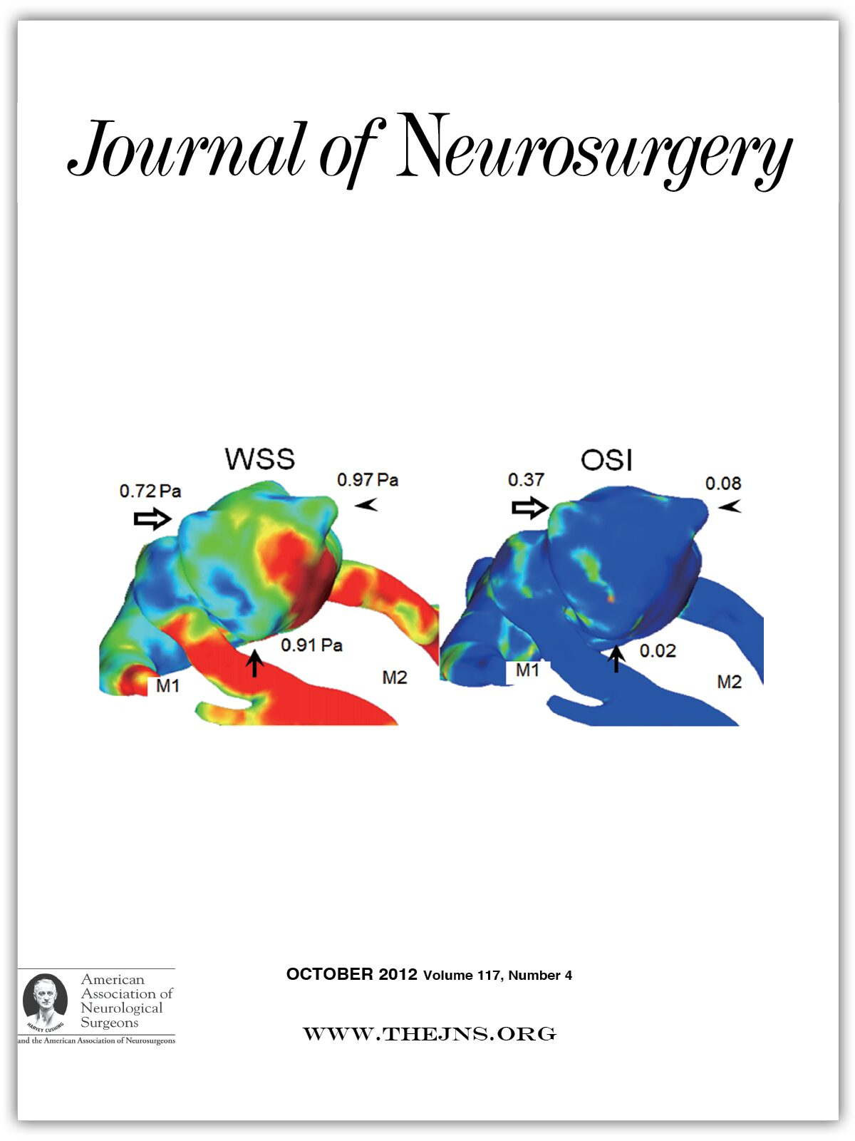 Intermuscular Lipoma Of The Gluteus Muscles Compressing The Sciatic Nerve An Inverted Sciatic Hernia In Journal Of Neurosurgery Volume 117 Issue 4 2012