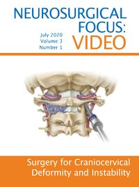 Volume 3: Issue 1 (July 2020): Surgery for craniocervical deformity and instability