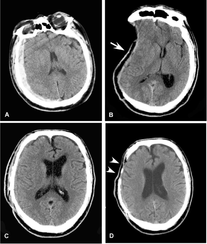 Complications of decompressive craniectomy for traumatic brain