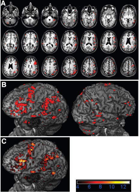 The role of functional magnetic resonance imaging in brain