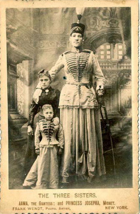 Early descriptions of acromegaly and gigantism and their historical