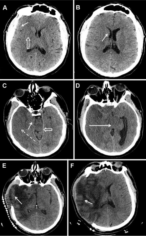 The role of imaging in acute ischemic stroke in: Neurosurgical Focus