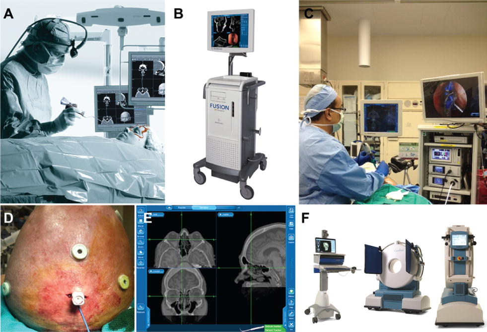 Experience with intraoperative navigation and imaging during