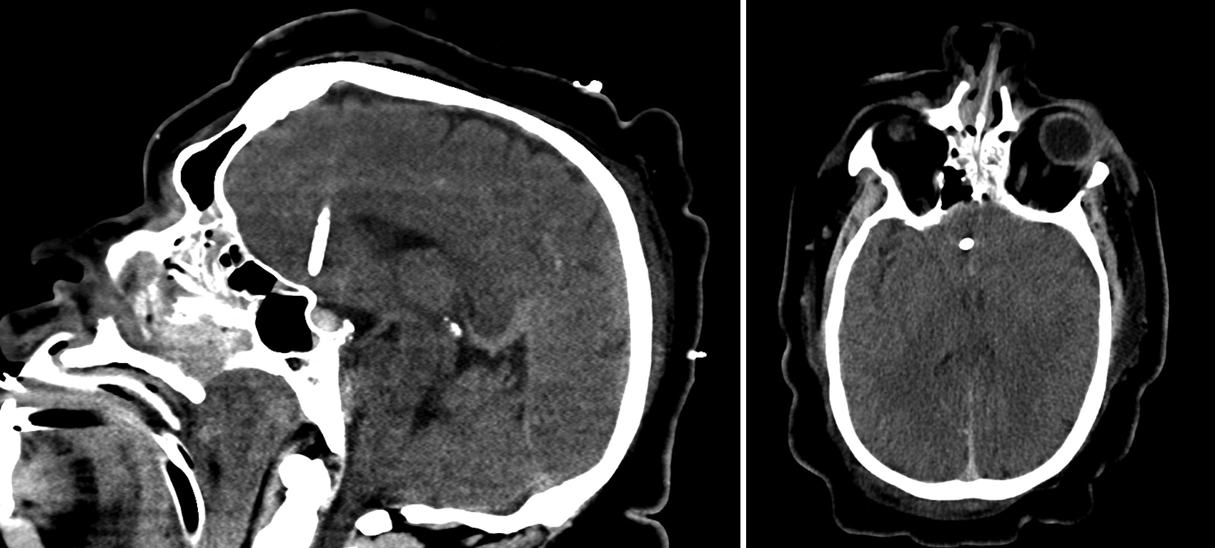 bb2508661de Noncontrast sagittal (left) and axial (right) head CT scans demonstrating  anterior misplacement of an EVD