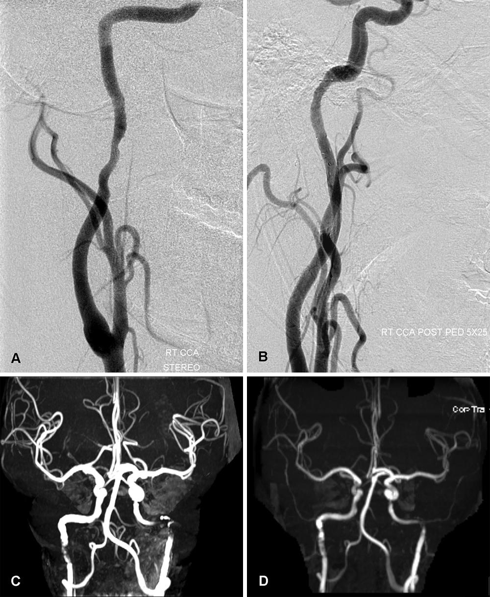 Spontaneous bilateral internal carotid and vertebral artery