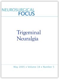 Management of medically refractory trigeminal neuralgia in patients