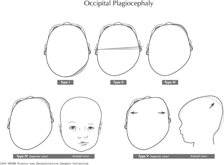 efficacy of passive helmet therapy for deformational plagiocephaly