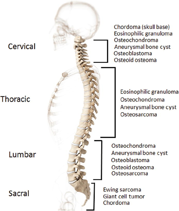 Primary Osseous Tumors Of The Pediatric Spinal Column Review Of