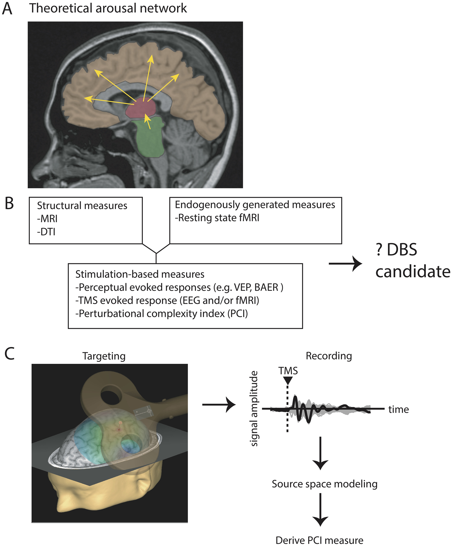 Deep Brain Stimulation For The Treatment Of Disorders Results Simple Diagram 505 Fig 1