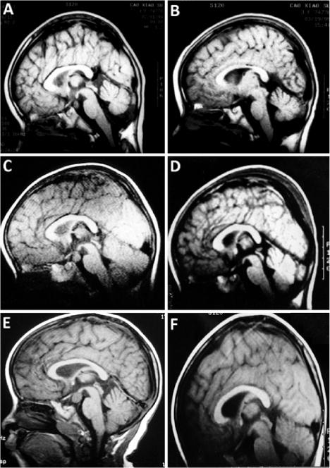 Surgical treatment of hypothalamic hamartoma causing central