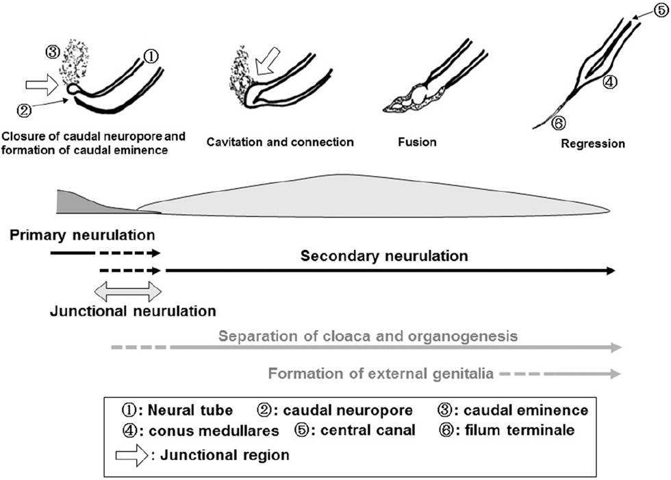 New classification of spinal lipomas based on embryonic