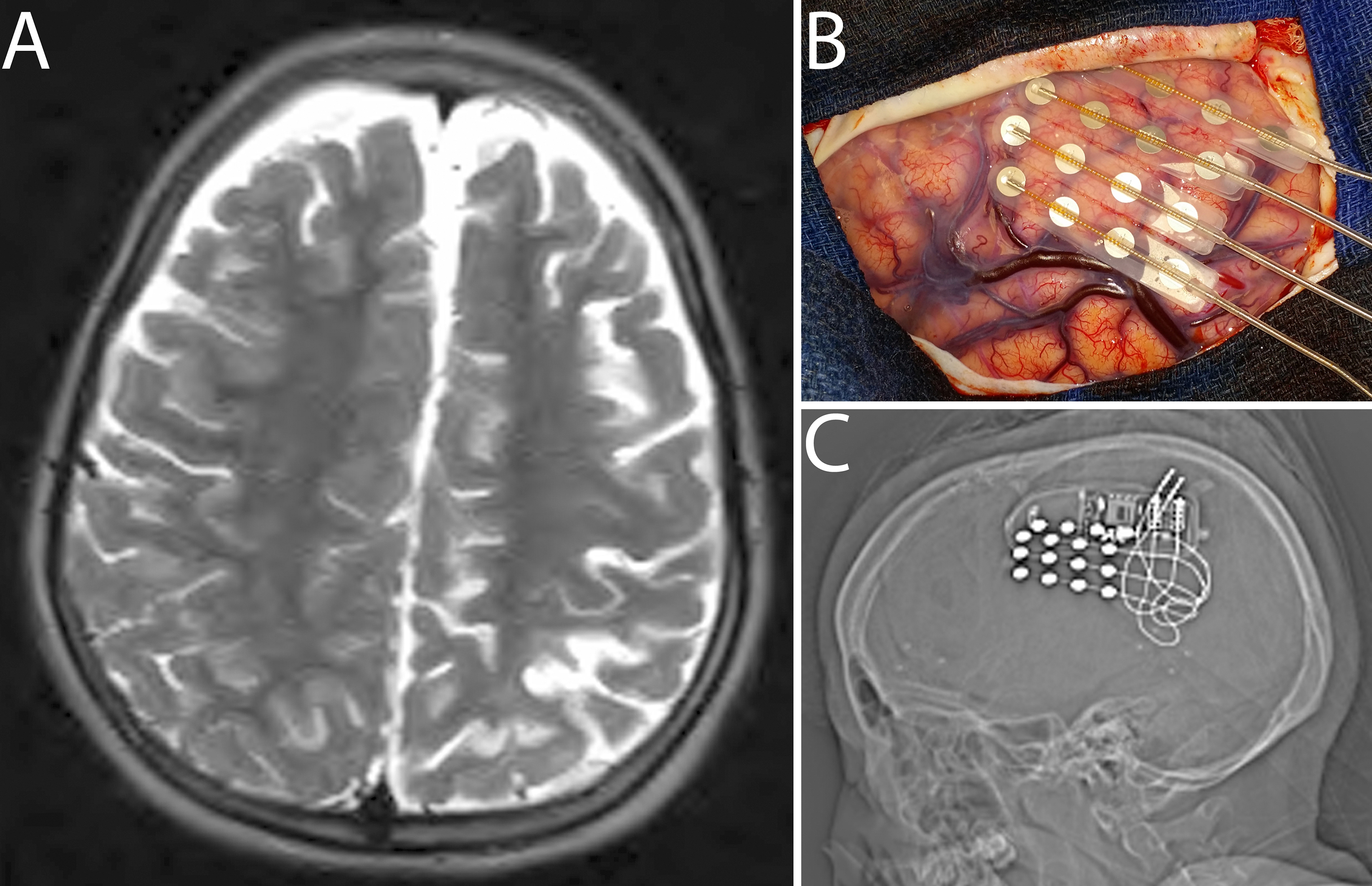 Treatment of medically refractory seizures with responsive