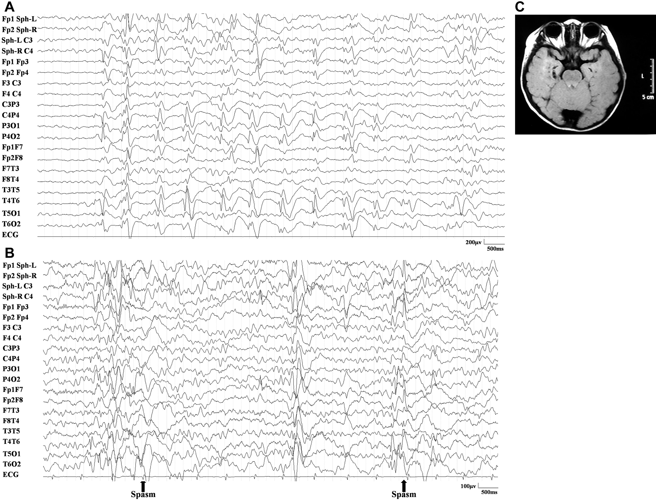 Concordance between the interictal focal EEG pattern and MRI