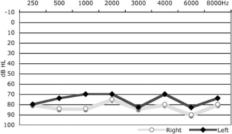 Resolution of hydrocephalus-associated sensorineural hearing