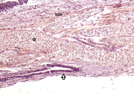 Histological Structure Of Filum Terminale In Human Fetuses In Journal Of Neurosurgery Pediatrics Volume 13 Issue 4 2014 The last portion of the pia mater. histological structure of filum