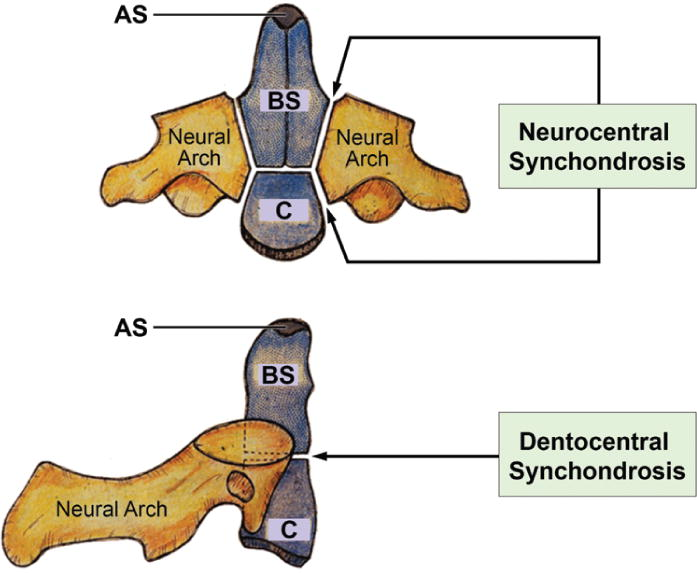 Traumatic Rupture Of The Neurocentral Synchondrosis Of The Axis In A Child In Journal Of Neurosurgery Pediatrics Volume 13 Issue 5 2014 Synchondrosis where the connecting medium is hyaline cartilage, a cartilaginous joint is termed a sacrococcygeal symphysis. neurocentral synchondrosis