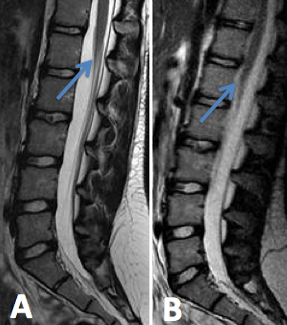 Magnetic Resonance Imaging In The Prone Position And The Diagnosis Of Tethered Spinal Cord In Journal Of Neurosurgery Pediatrics Volume 21 Issue 1 2018 The entity of an occult tight filum terminale syndrome, characterized by clinical findings consistent with a tethered cord syndrome, but with the conus ending in a normal position and filum > 2mm but no fatty infiltration. tethered spinal cord