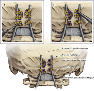 Spinal instrumentation in infants, children, and adolescents
