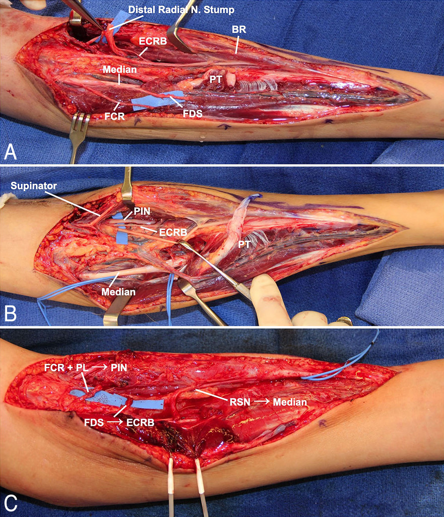 Median to radial nerve transfer after traumatic radial nerve
