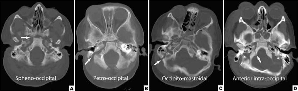 Fractures Of The Clivus And Traumatic Diastasis Of The Central Skull Base In The Pediatric Population In Journal Of Neurosurgery Pediatrics Volume 7 Issue 3 2011 No 201 cranial base fusions were evident in the wild type littermate mice. fractures of the clivus and traumatic