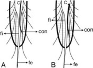 Gross And Microscopic Study Of The Filum Terminale Does The Filum Contain Functional Neural Elements In Journal Of Neurosurgery Pediatrics Volume 9 Issue 1 2012 Upper three quarters of the filum. filum terminale