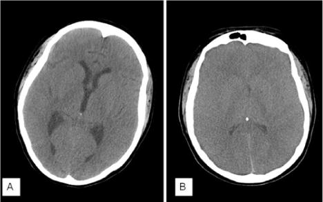 Sudden death from diffuse leptomeningeal
