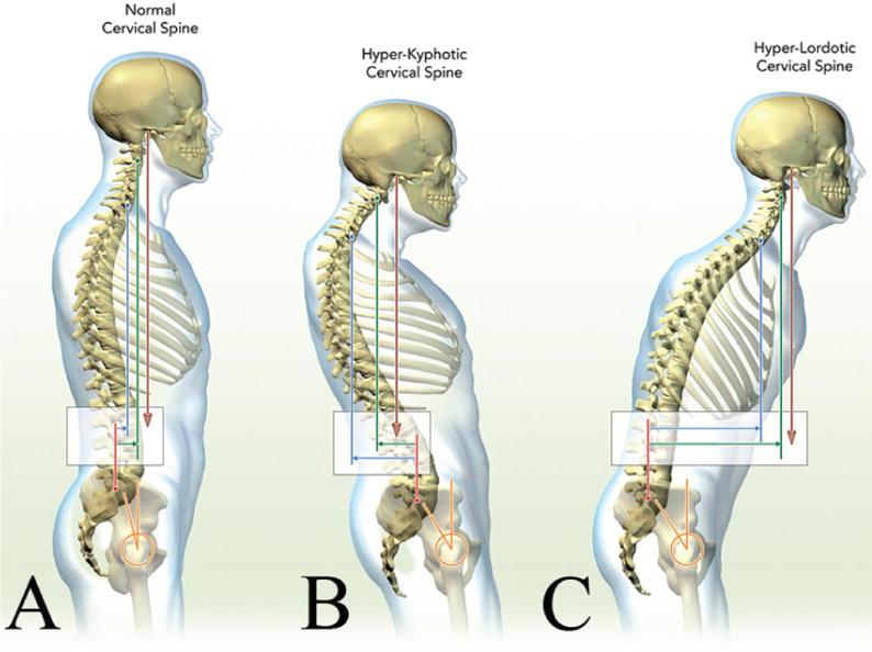 Cervical Spine Alignment Sagittal Deformity And Clinical