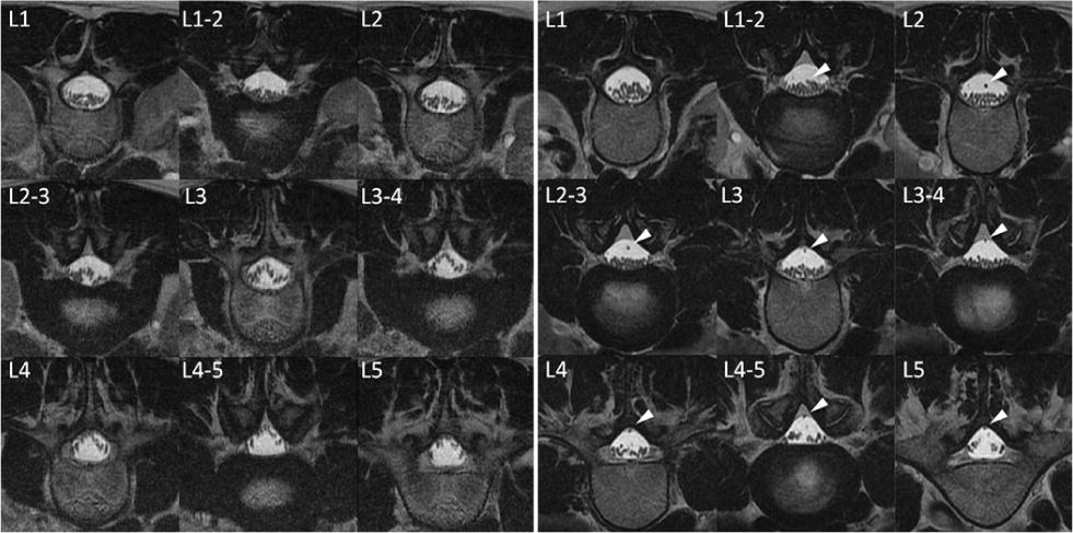 Use Of Prone Position Magnetic Resonance Imaging For Detecting The Terminal Filum In Patients With Occult Tethered Cord Syndrome In Journal Of Neurosurgery Spine Volume 18 Issue 1 2013 …vertebra, but its continuation, the filum terminale, can be traced through the sacrum to the first coccygeal vertebra. occult tethered cord syndrome