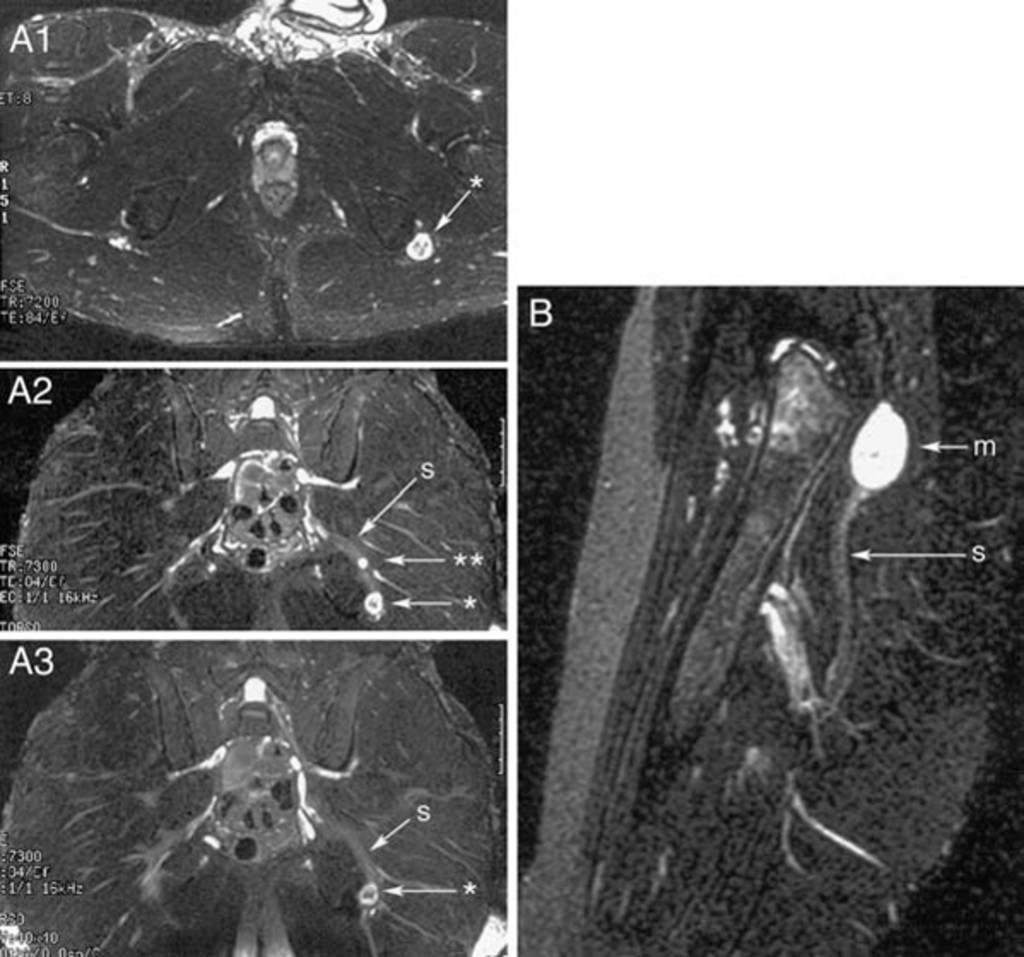 Figure 5 from Detection and prevalence of variant sciatic ... |Piriformis Muscle Mri