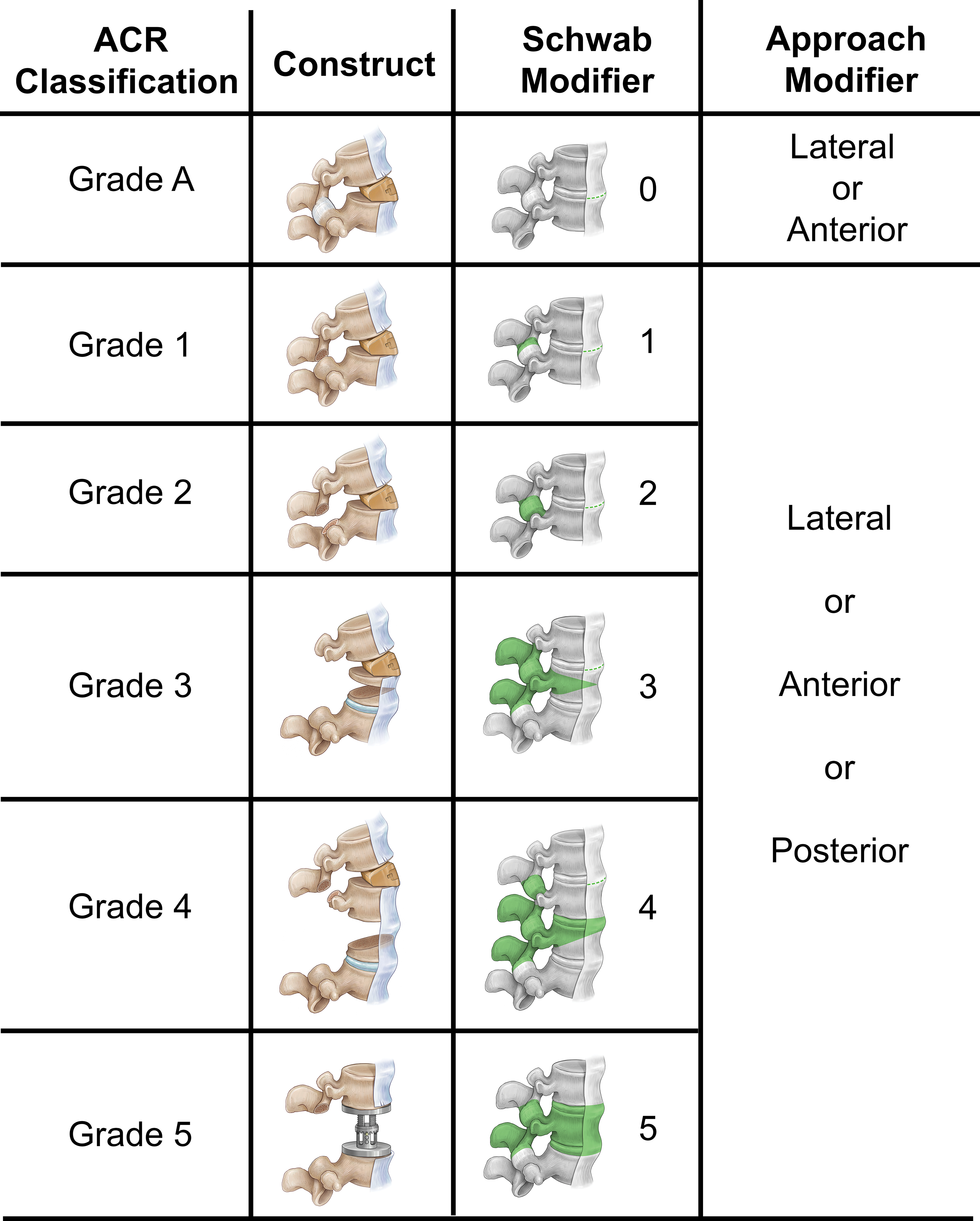 The Comprehensive Anatomical Spinal Osteotomy And Anterior Column Realignment Classification In