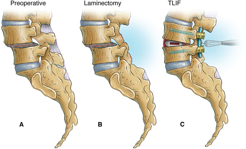 Laminectomy Alone Versus Fusion For Grade 1 Lumbar Spondylolisthesis