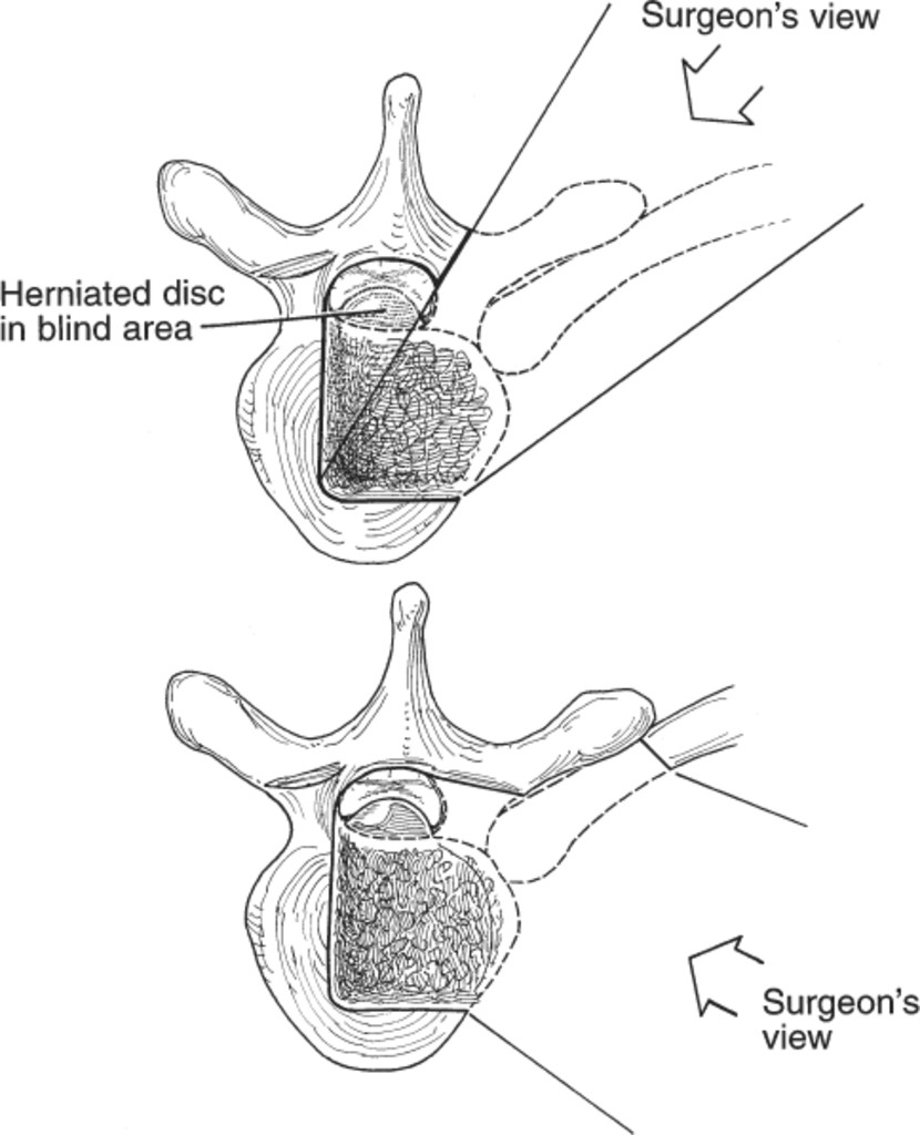 reoperation for herniated thoracic discs in journal of neurosurgery Spinal Cord Meninges fig 3