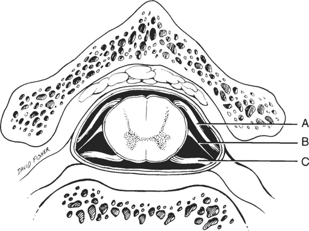 The Denticulate Ligament Anatomy And Functional Significance In Journal Of Neurosurgery Spine Volume 94 Issue 2 2001 The filum terminale helps to anchor the spinal cord in place. the denticulate ligament anatomy and
