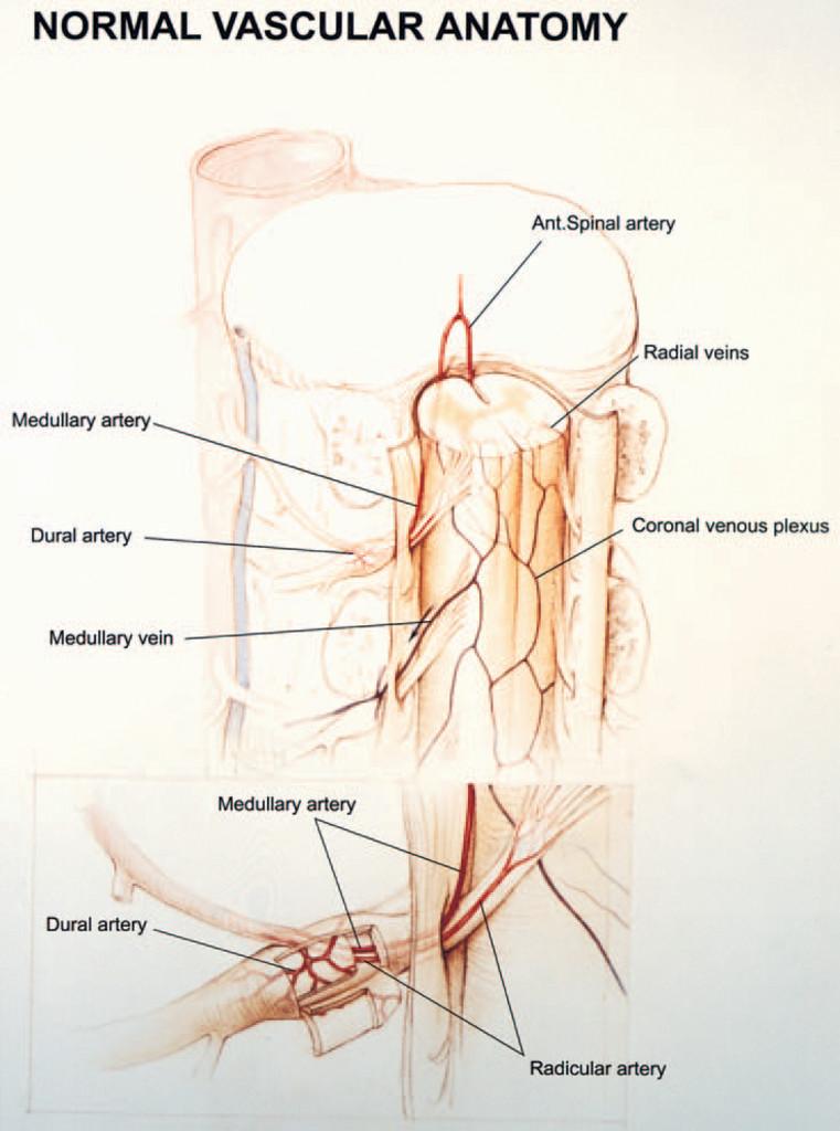 Successful Management Of Spinal Dural Arteriovenous Fistulas