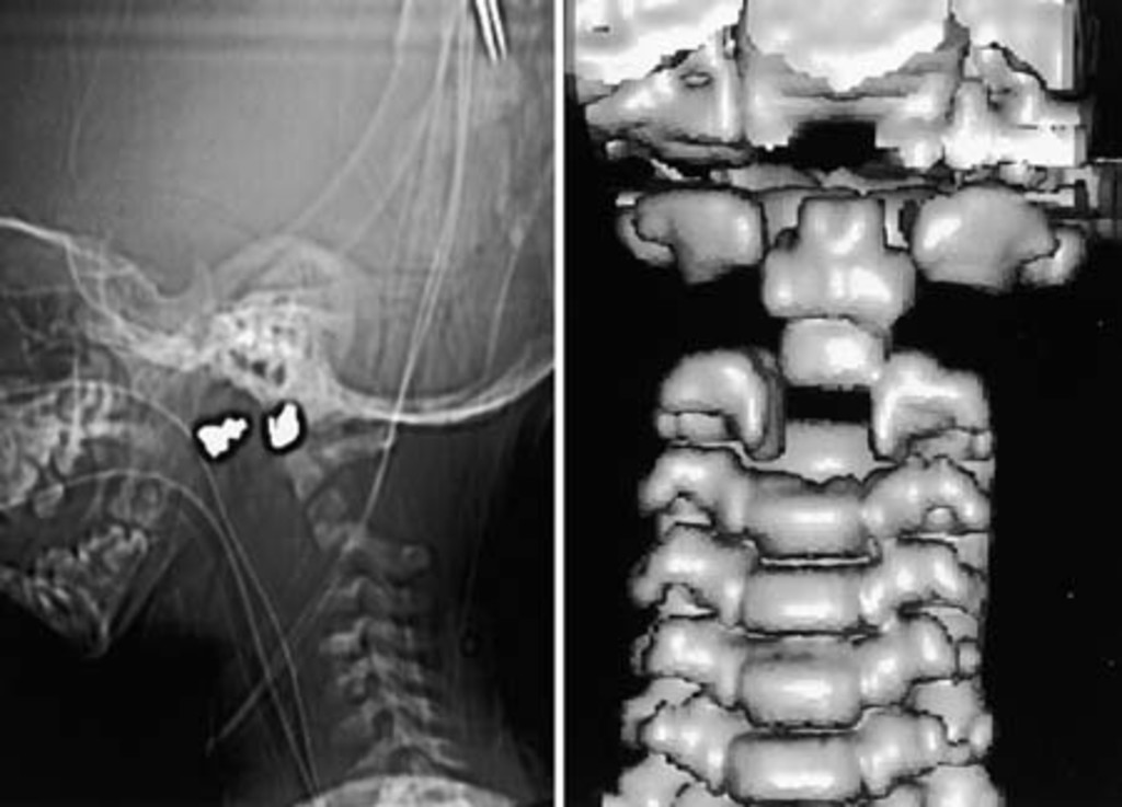 Fracture Dislocation Of The Neurocentral Synchondroses Of The Axis In Journal Of Neurosurgery Spine Volume 96 Issue 3 2002 Fusion of the os terminale with the rest of the dens usually occurs by age 13.16,21. fracture dislocation of the