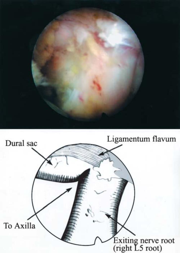 View Endoscopy Procedure: Posterolateral Percutaneous Endoscopic Lumbar Foraminotomy
