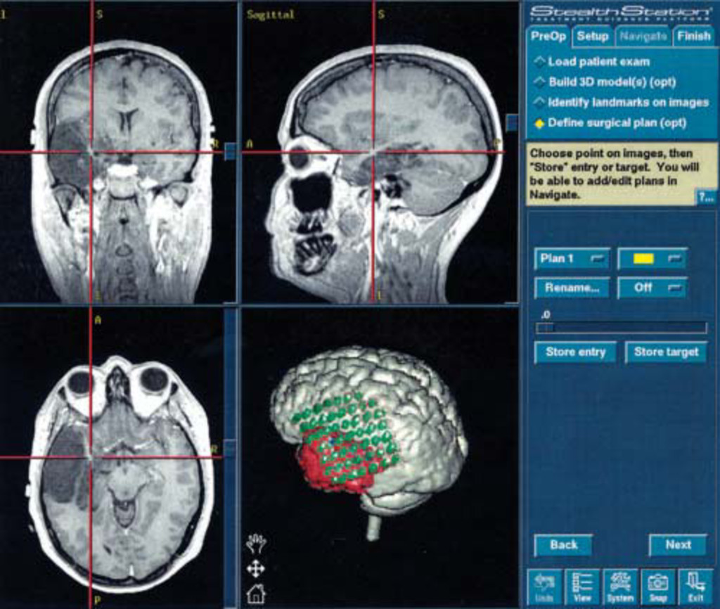 Multimodality image-guided surgery for the treatment of