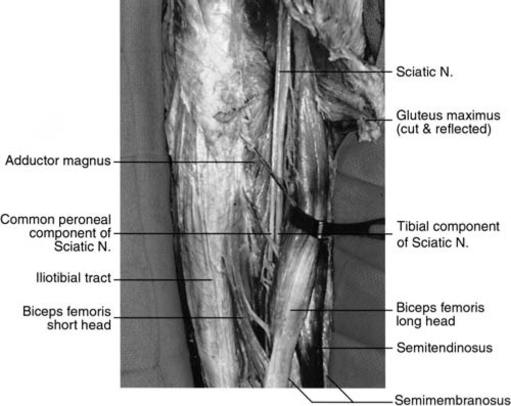 Management And Outcomes In 353 Surgically Treated Sciatic Nerve