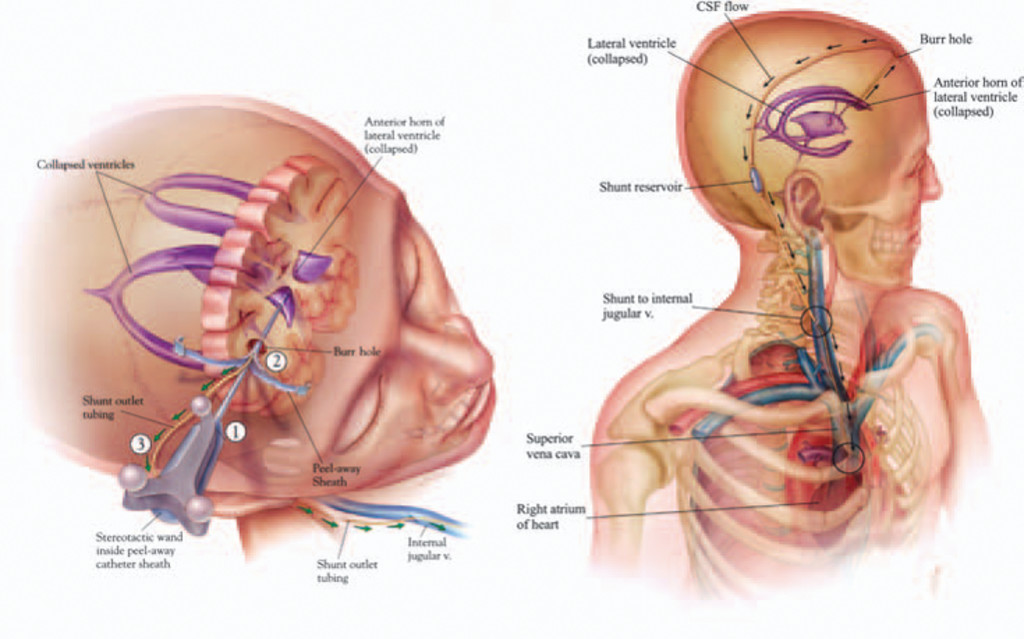 Cerebrospinal fluid shunt placement for pseudotumor cerebri ...