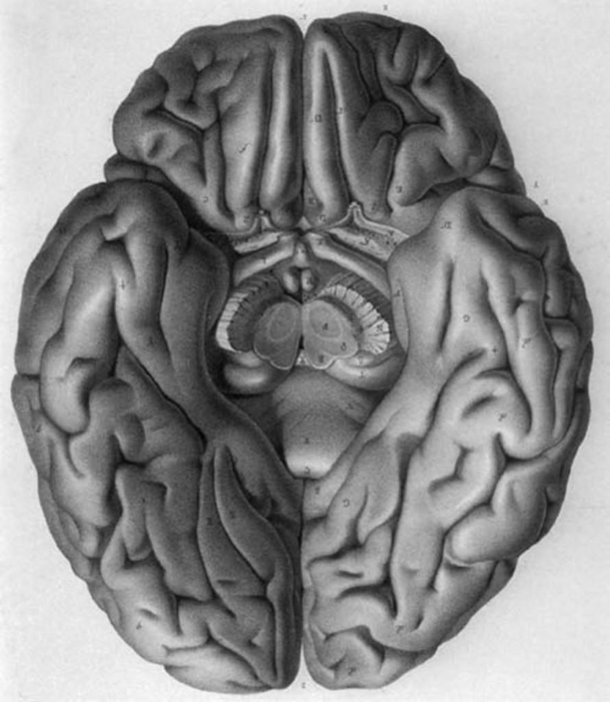 Impact of temporal lobe surgery : Journal of Neurosurgery