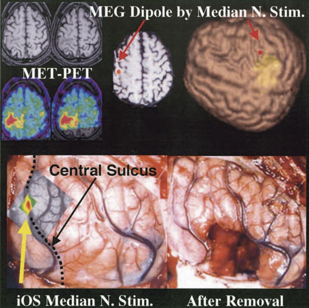 Imaging of somatotopic representation of sensory cortex with