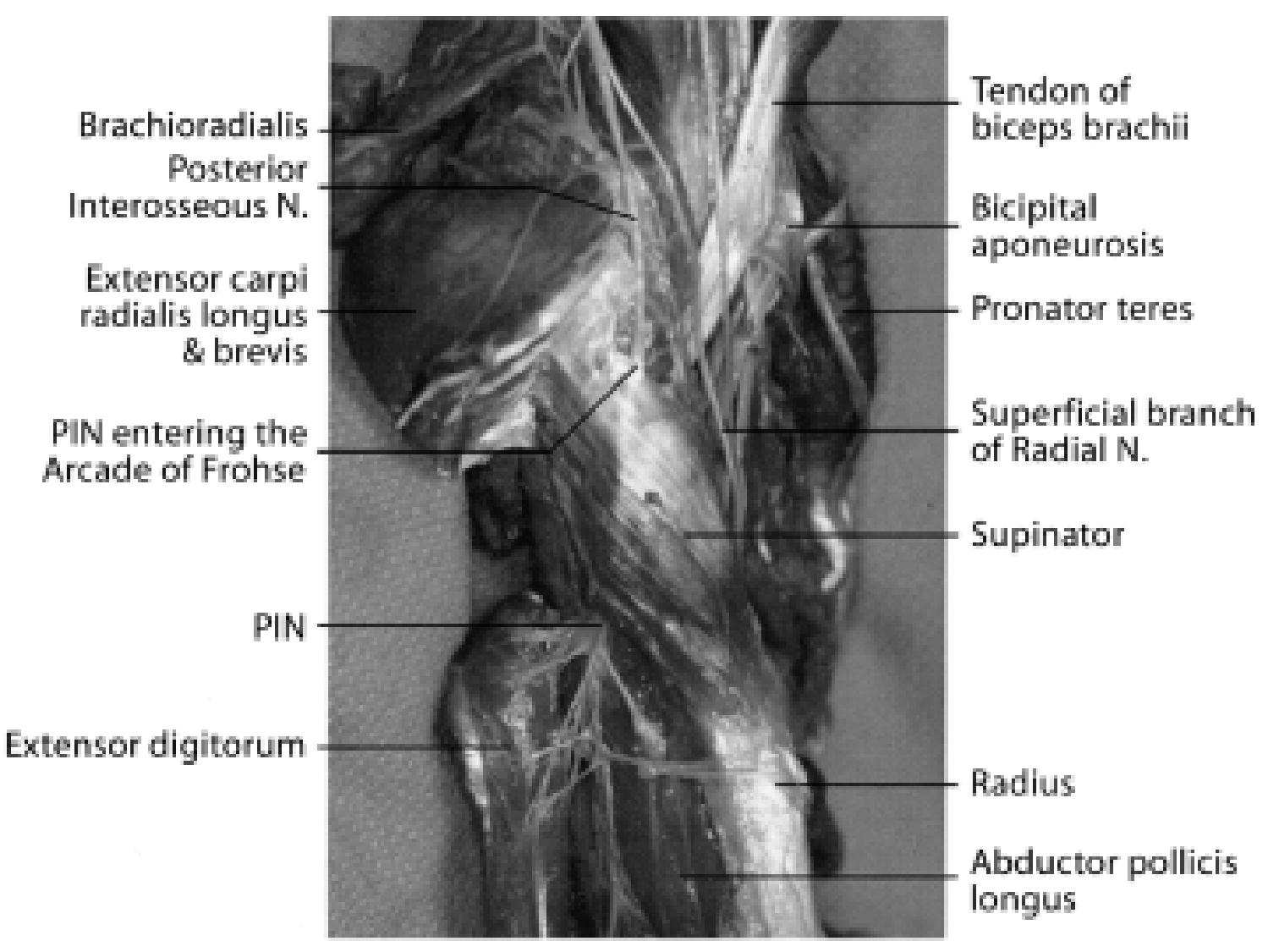 Surgical Treatment And Outcomes In 45 Cases Of Posterior