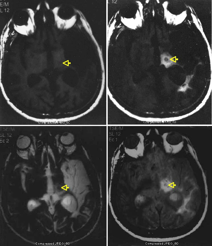 Gamma Knife surgery targeting the centromedian nucleus of