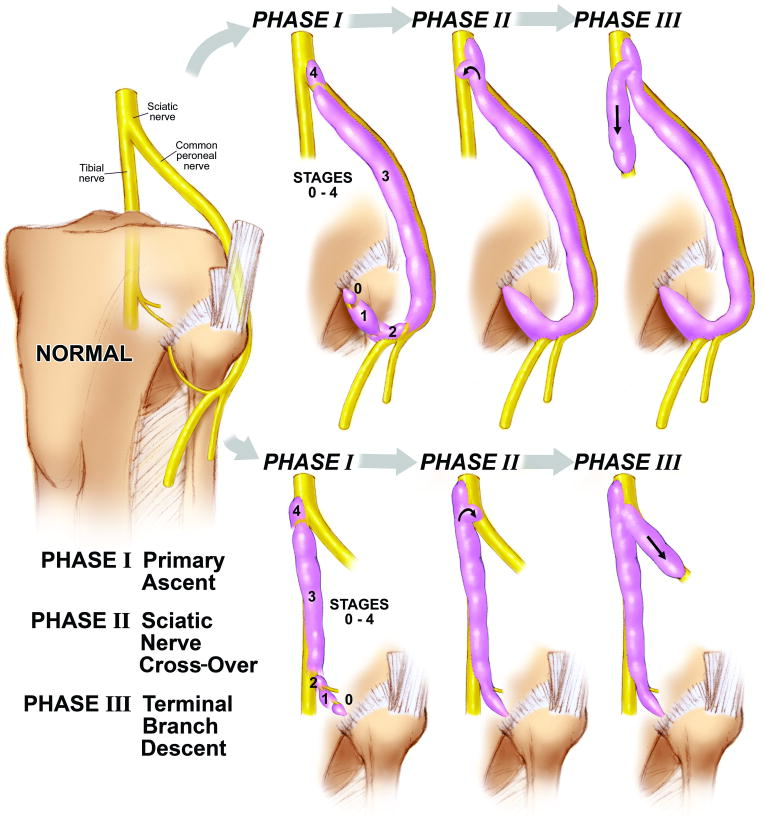 Dynamic Phases Of Peroneal And Tibial Intraneural Ganglia Formation
