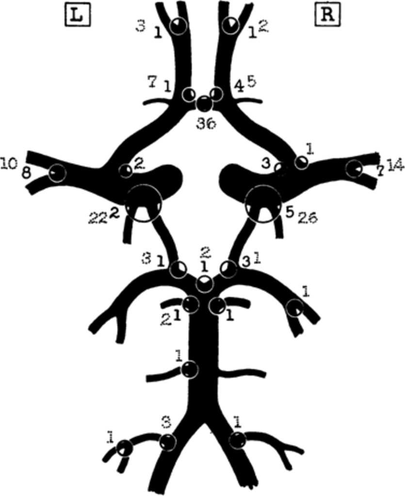 The Pathologic Anatomy Of Ruptured Cerebral Aneurysms In Journal Of
