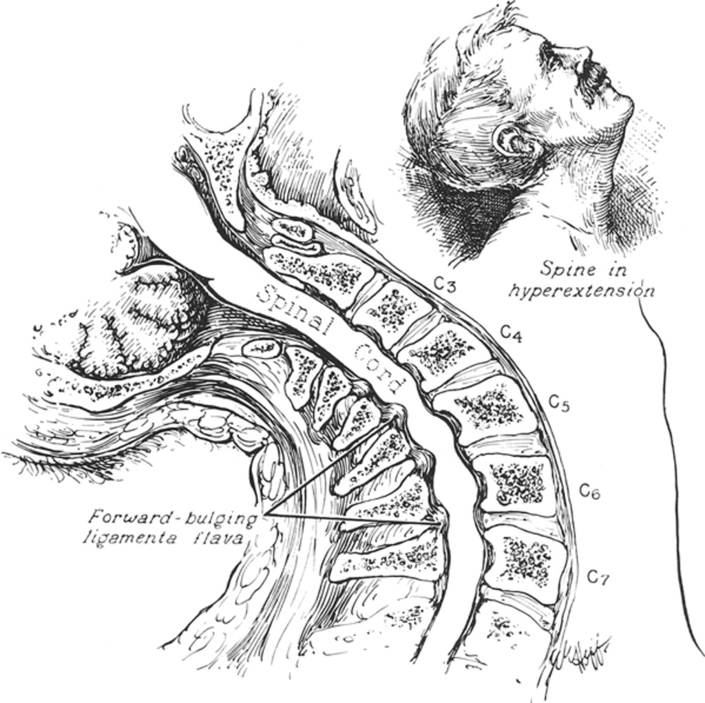 It is a graphic of Bewitching Spinal Cord Drawing