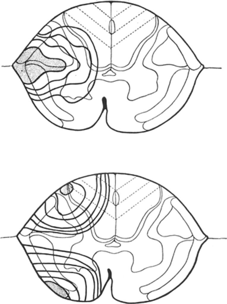 the syndrome of acute central cervical spinal cord injury in Years of Silver Proof Sets above longitudinal tensile stresses set up by lateral displacement of nerve fibers below torsional stresses in posterolateral and anterolateral areas