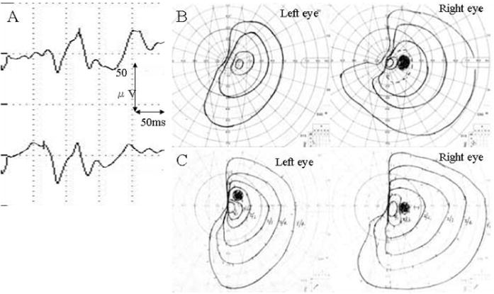 Intraoperative Monitoring Of Cortically Recorded Visual Response For