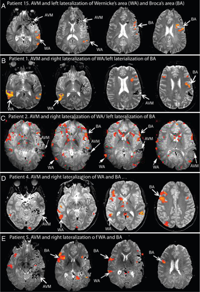 Factors predicting language lateralization in patients with