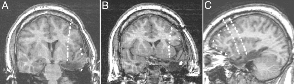 Stereotactic depth electrode investigation of the insula in